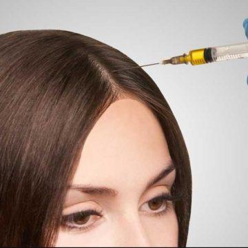 Biorevitalization Hair